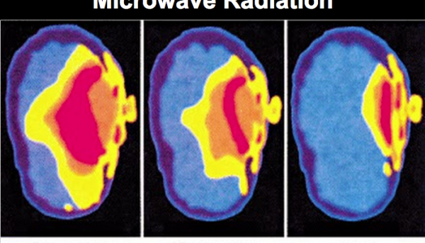 wifi a mozek