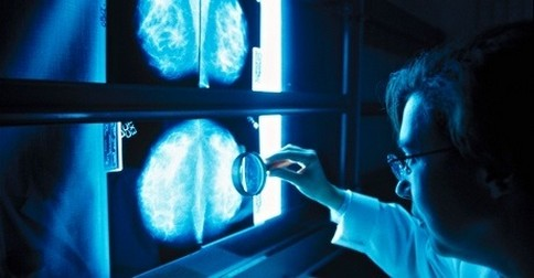 škodlivý rentgen v mamografii